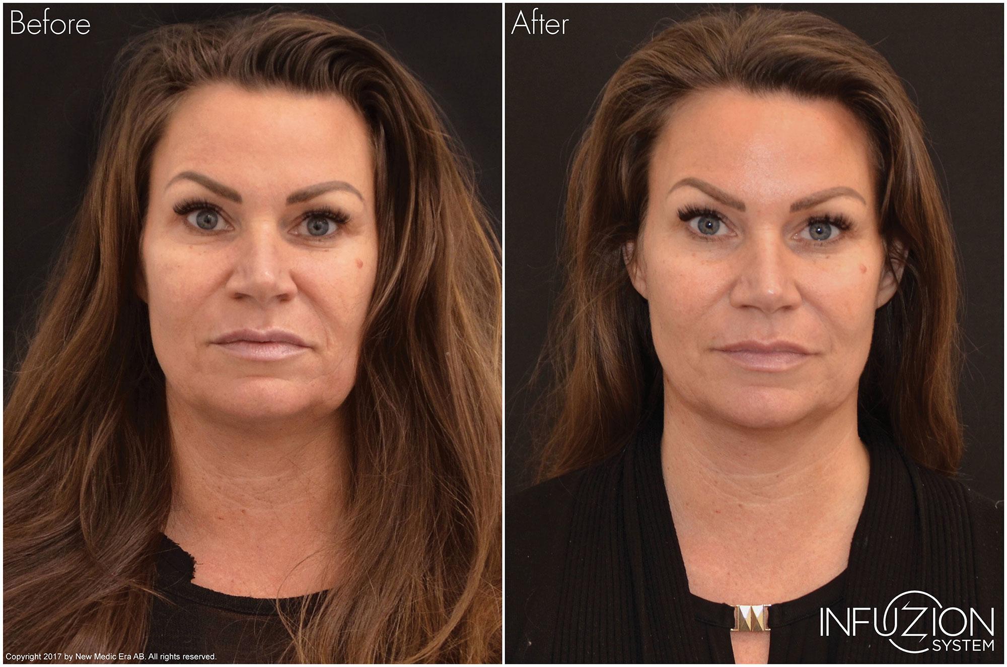 Kvinna före och efter behandling med Infuzion, skinbooster utan nålar