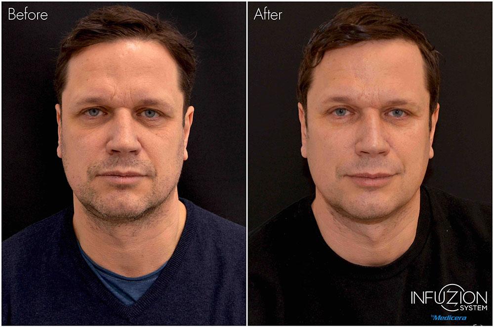 Man före och efter behandling med Infuzion, hudförbättring utan nålar.