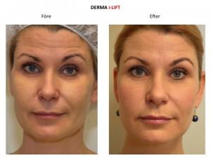 Kvinna före och efter behandling med V Soft Lift, ansiktslyft utan kirurgi.
