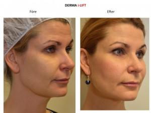 Kvinna före och efter behandling med trådar utan kirurgi, V Soft Lift.