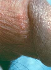 Kondylom behandlas med erbiumlaser